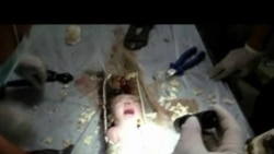 Chinese Newborn Rescued from Sewage Pipe