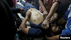 31일 인도-파키스탄 분쟁 지역인 카슈미르 지역의 스리나가르 시에서 인도 경찰과 시위대 간 충돌이 발생한 가운데 부상자가 병원으로 이송되고 있다.