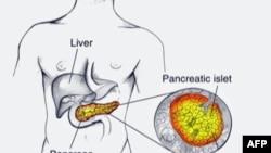 Pankreas se nalazi duboko u trbušnoj duplji i simptomi su vidljivi tek u poodmakloj fazi bolesti