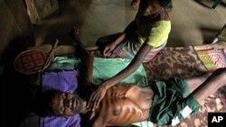 印度中部一个保健中心一名茶农营养不良而病倒