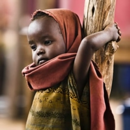 A newly arrived Somali refugee child awaits medical examinations at the Dadaab camp, near the Kenya-Somalia border