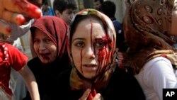 Perempuan-perempuan Suriah yang terluka dalam serangan udara di kota Azaz, pinggiran Aleppo, Suriah., tiba di rumah sakit darurat. (Foto: Dok)