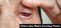 印尼德龙镍业的一名失明工人(照片来源:中国劳工观察)