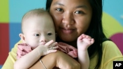 Pattaramon Chanbua, 21, poses her baby boy Gammy at a hospital in Chonburi province, southeastern Thailand Sunday, Aug. 3, 2014.