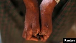 FILE - A patient shows the effects of leprosy on his hands in Myanchaung Leprosy Hospice, Halegu township, Yangon Division, Jan. 21, 2014. Southern Malawi has seen a resurgence of leprosy, which was believed to have been stamped out in the country in 1970.