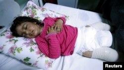 Dima Nadm Hamid (3 tahun), sedang menjalani perawatan atas kemungkinan terkena senjata kimia. di sebuah rumah sakit di Mosul barat, Irak, Sabtu (4/3).
