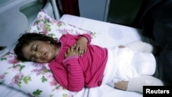Dima Nadm Hamid, de 3 años, está siendo tratada por posible exposición a agentes de armas químicas en un hospital al oeste de Mosul, Irak, el 4 de marzo de 2017.