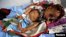 지난 2일 예멘 호데이다의 병원에서 영양실조에 걸린 아기가 병원 침대 위에 누워있다.