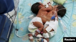 FILE - Conjoined twin girls, born in Peru in April 2015, are shown at three days old. Another set of conjoined twin girls was born in northern India Feb. 3, 2016.