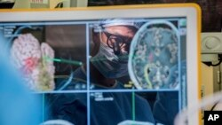In this 2017 photo provided by the University of California, San Francisco, neurosurgeon Dr. Edward Chang is reflected in a computer monitor displaying brain scans as he performs surgery at UCSF. (Barbara Ries/UCSF via AP)