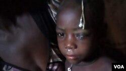 Criança que cegou devido a sarampo