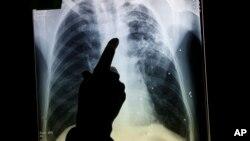 결핵 환자의 X-레이 사진. (자료사진)