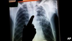 Pemindaian paru-paru penderita TB dengan menggunakan X-ray (foto: ilustrasi).