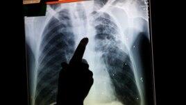 24 Marsi, Dita Botërore e Tuberkuzolit
