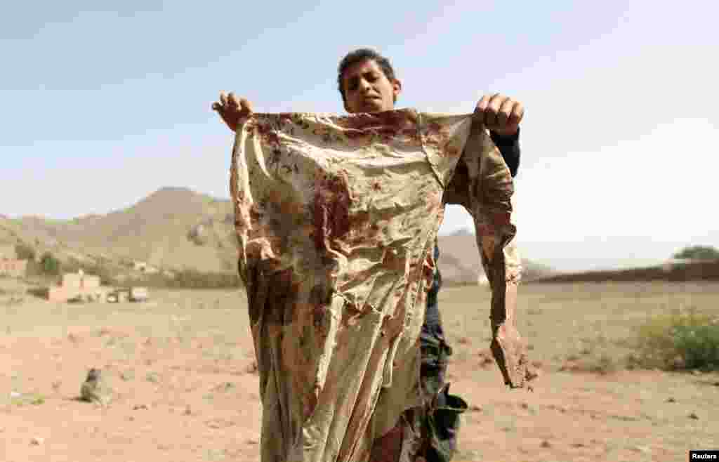 A boy holds a blood-stained garment at the site of an airstrike on a house, in Bait Rejal village, west of Sana'a, April 7, 2015.