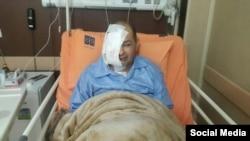 علیرضا رجایی روزنامه نگار و فعال ملی مذهبی پس از جراحی صورت