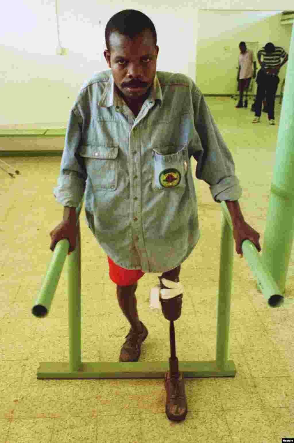 Angolano ferido em minas terrestres tem a perna amputada