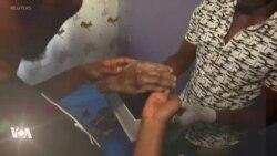 Un Nigérian fabrique des prothèses aux teintes de ses patients