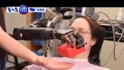 Robot thay thế cánh tay con người
