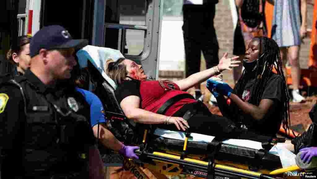 미국 사우스캐롤라이나주 컬럼비아에서 백인 경찰의 과잉 진압으로 숨진 흑인 남성 조지 플로이드 사건에 항의하는 유혈 시위가 발생한 가운데 시위 중 부상한 여성이 구급차로 옮겨지고 있다.