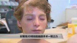 美国万花筒:好莱坞3D特技助脑手术一臂之力