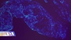 ბაქტერიები ნაწლავებში ჯანმრთელობაზე და ხასიათზე მოქმედებს