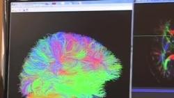 Dữ liệu chụp não giúp đẩy nhanh nghiên cứu các chứng đau