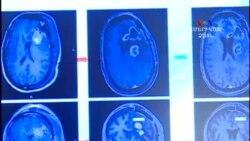 Ուղեղի ուռուցքի բուժման նոր հույս