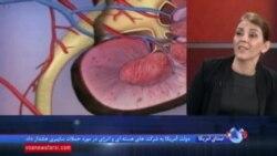 پزشکان میگویند به راز متاستاز سلولهای سرطانی دست یافتهاند