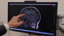 Mutación genética de esclerosis múltiple