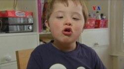 Nueva prueba síndrome de Down