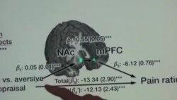 تایید وجود درد مزمن با نقشه برداری از مغز