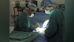 Trasplante curó diabético
