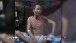 VN đặc xá 1 tù nhân lương tâm bị ung thư giai đoạn cuối