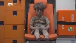 Haunting Photo, Video of Syrian Child Injured in Airstrike Goes Viral