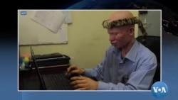 """Maimouna Déné: """"Le chemin est encore long"""" pour les albinos du Faso"""