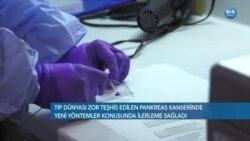 Pankreas Kanseri Teşhisinde Umut Veren Yeni Yöntemler