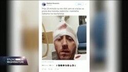 Napad na novinara u Banja Luci izazvao proteste