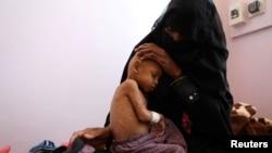 ARHIVA - Majka dvogodišnjeg Ravija Avada u krilu za neuhranjene pacijente u bolnici al-Sabin u Sani, 13. februara 2021. Feb. 13, 2021.