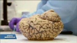Uzmanlar Beyni İnceleyerek Parkinson'a Çözüm Bulmaya Çalışıyor