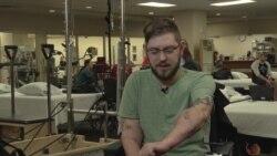 Що відчуває людина з трансплантованими руками. Відео
