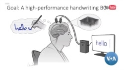 Computers and Brains: Sensors Implanted in the Brain Help Paralyzed Man Write