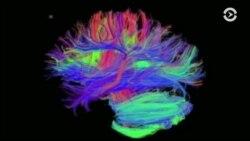 Возраст и старение мозга