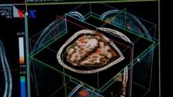 Better Health Habits Can Lessen Dementia Risk
