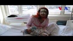 Afganistan'dan Ankara'ya Kadınlık Dramı