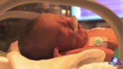 美国单羊膜双胞胎顺利出生