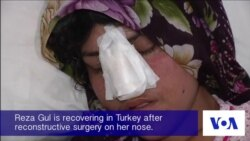 Afghan Woman Undergoes Surgery After Husband Cuts Off Her Nose