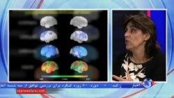 درمان بیماران مبتلا به آلزایمر، آرزویی که به واقعیت می پیوندد