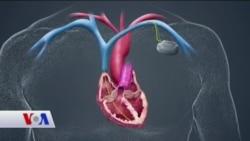 Kalp Pilleri Elektroşokla Yaşatıyor