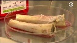 Специалистам из Израиля удалось пересадить полученные в лабораторных условиях костные клетки пациентам с поврежденными челюстными костями